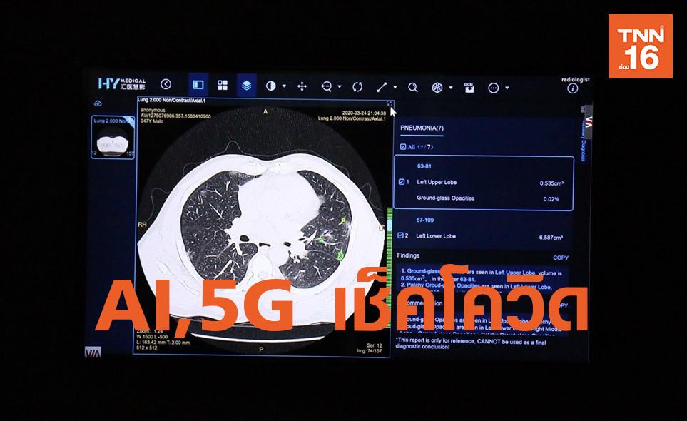 ใช้ AI และเครือข่าย 5G วินิจฉัยผู้ป่วยโควิด-19