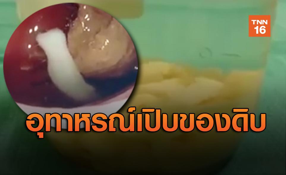 อุทาหรณ์กินของดิบ! หมอดึงพยาธิตัวตืดจากปากผู้ป่วย