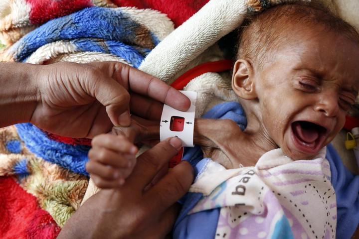 โครงการอาหารโลกร้อง 'คนรวย' ช่วยเหลือ 'คนหิวโหย' ทั่วโลก