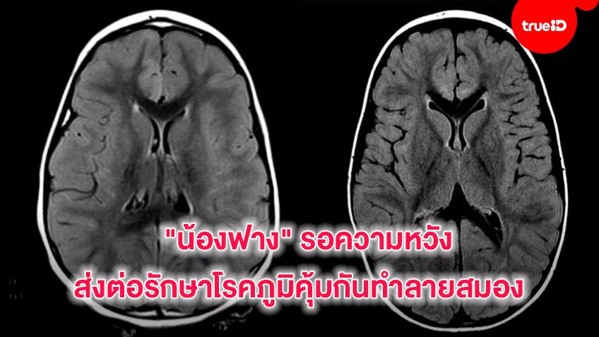 """""""น้องฟาง""""รอความหวังส่งต่อรักษาโรคภูมิคุ้มกันทำลายสมอง"""