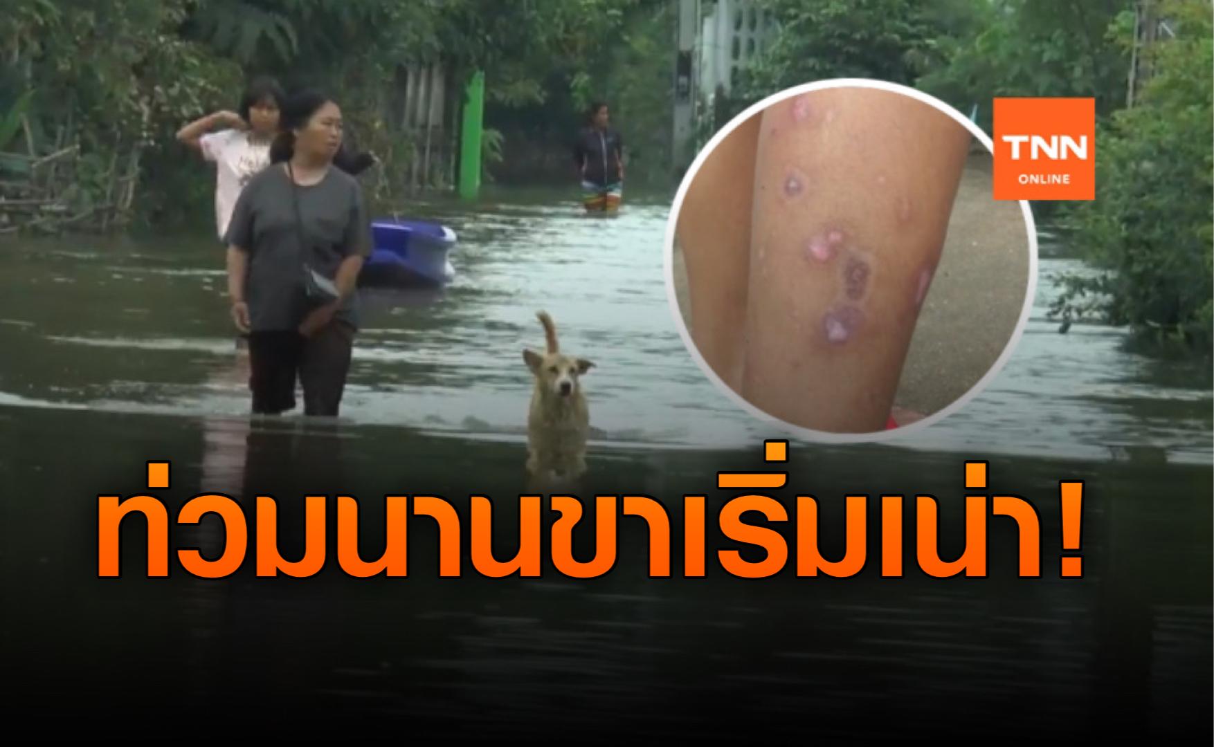 โคราชน้ำท่วมนาน! ชาวบ้านเริ่มป่วย น้ำกัดเท้า-ขาเริ่มเน่า