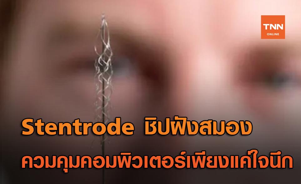 Stentrode ชิปฝังสมอง ช่วยให้ผู้ป่วยพิการควบคุมคอมพิวเตอร์แบบไร้สาย เพียงแค่ใจนึกคิด