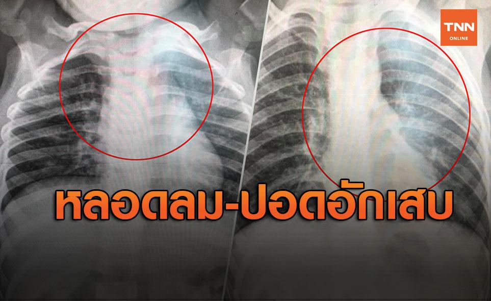 เปิดภาพปอดจากเด็กที่ป่วย ไวรัส RSV ชี้ทำหลอดลม-ปอดอักเสบ