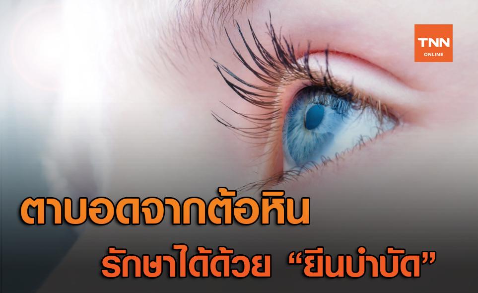 """รักษาอาการตาบอด จากโรคต้อหิน ได้ด้วย """"ยีนบำบัด"""" (Gene Therapy)"""