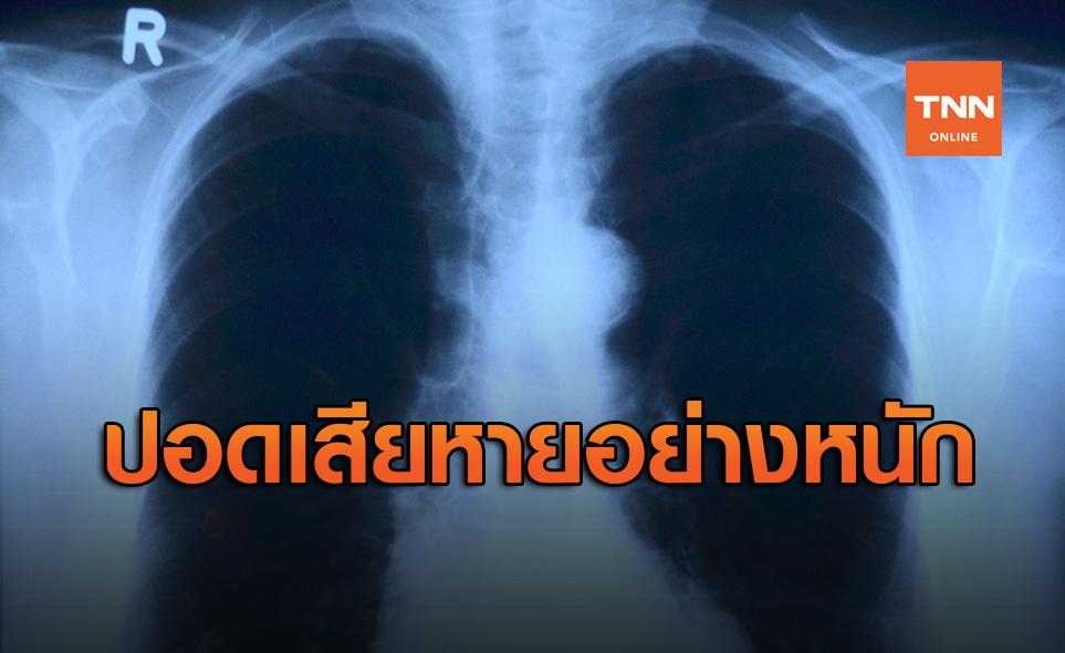 นักวิจัยชี้โควิด-19ไม่ใช่โรคธรรมดา หลังพบปอดผู้ตายเสียหายหนัก