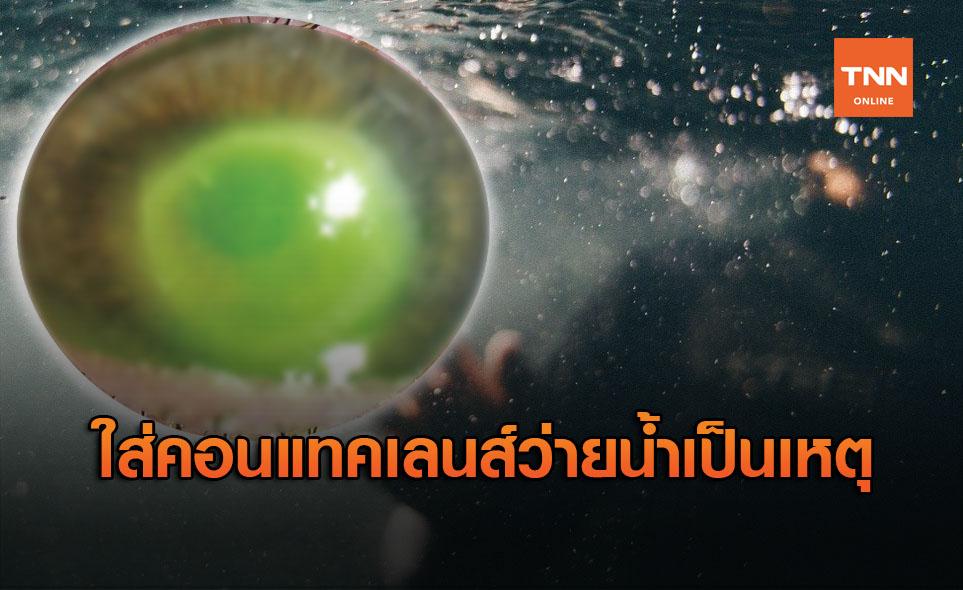 อุทาหรณ์! ใส่คอนแทคเลนส์ว่ายน้ำ ทำตาติดเชื้อถึงขั้นผ่าตัด