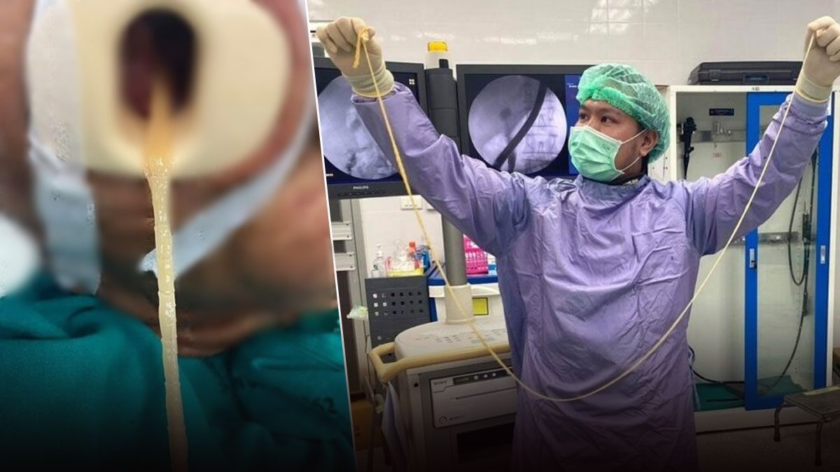 หมอผงะ! ผ่าตัดนิ่วเจอพยาธิตัวตืด กระดึ๊บในท่อน้ำดี ยาว 2 เมตร ดึงเท่าไหร่ก็ไม่หมด