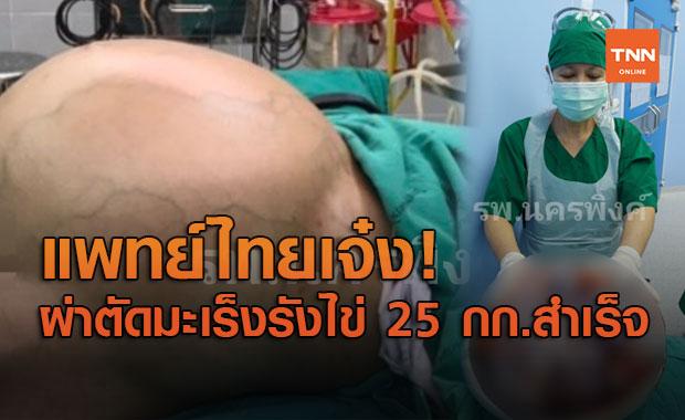 """แพทย์ไทยเจ๋ง! ผ่าตัด """"มะเร็งรังไข่"""" ขนาดยักษ์ หนักกว่า 25 กก.สำเร็จ"""