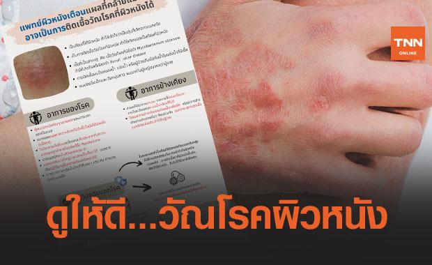 แพทย์ผิวหนังเตือน! แผลที่คล้ายแมลงกัด อาจเป็นการติดเชื้อวัณโรคที่ผิวหนังได้
