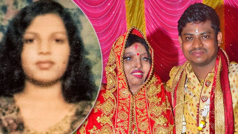"""สาวอินเดีย """"เหยื่อสาดน้ำกรด"""" เสียโฉม-ตาบอด วิวาห์หนุ่มรักแท้สุดชื่นมื่น"""