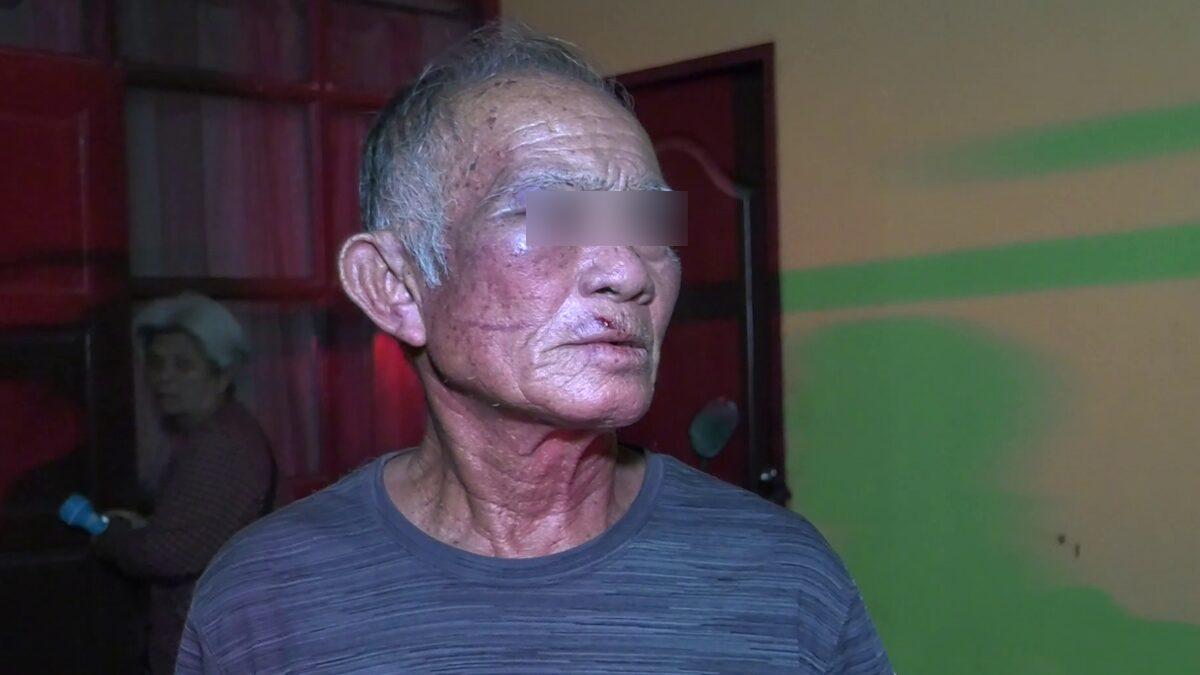 ลุงวัย 65 มึน คนร้ายเคาะประตู ก่อนใช้ไม้ฟาดน่วม หน้าบวมปูด-ตาปิด ยังไม่รู้สาเหตุ