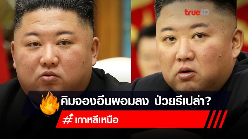 """ประชาชนใจสลาย ห่วง """"ผู้นำคิมจองอึน"""" ซูบผอมลง"""