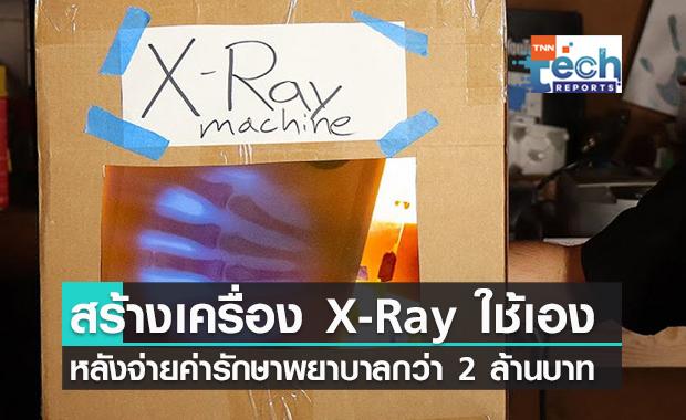 วิศวกรอเมริกัน สร้างเครื่อง X-Ray ใช้เอง หลังเสียค่ารักษาพยาบาลกว่า 2.3 ล้านบาท