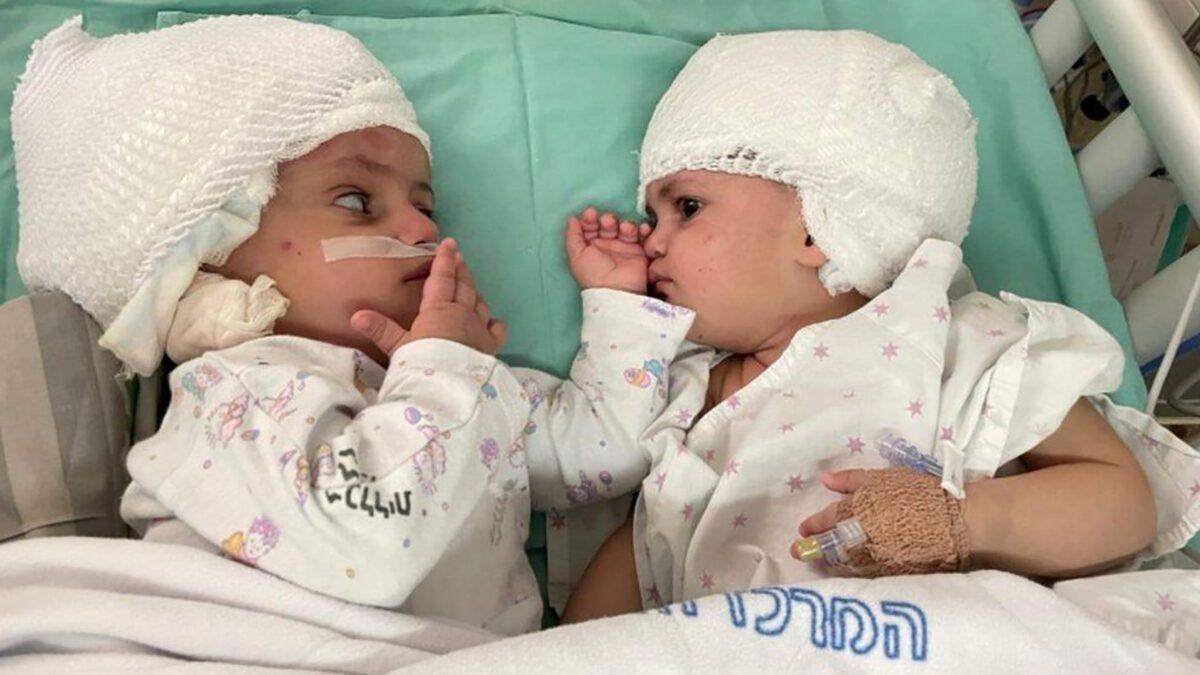 เห็นหน้ากันครั้งแรก แฝดศีรษะด้านหลังติดกัน ผ่าตัดแยกสำเร็จแล้วในอิสราเอล