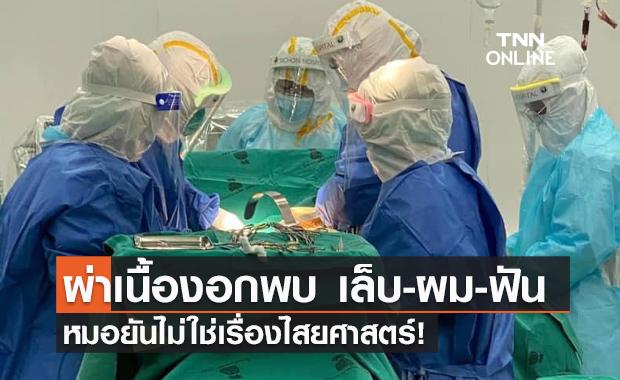 """ไม่ใช่ไสยศาสตร์! หมอผ่าตัดเนื้องอกสาววัย 17 ปีเจอ""""ผม-เล็บ-ฟัน"""""""