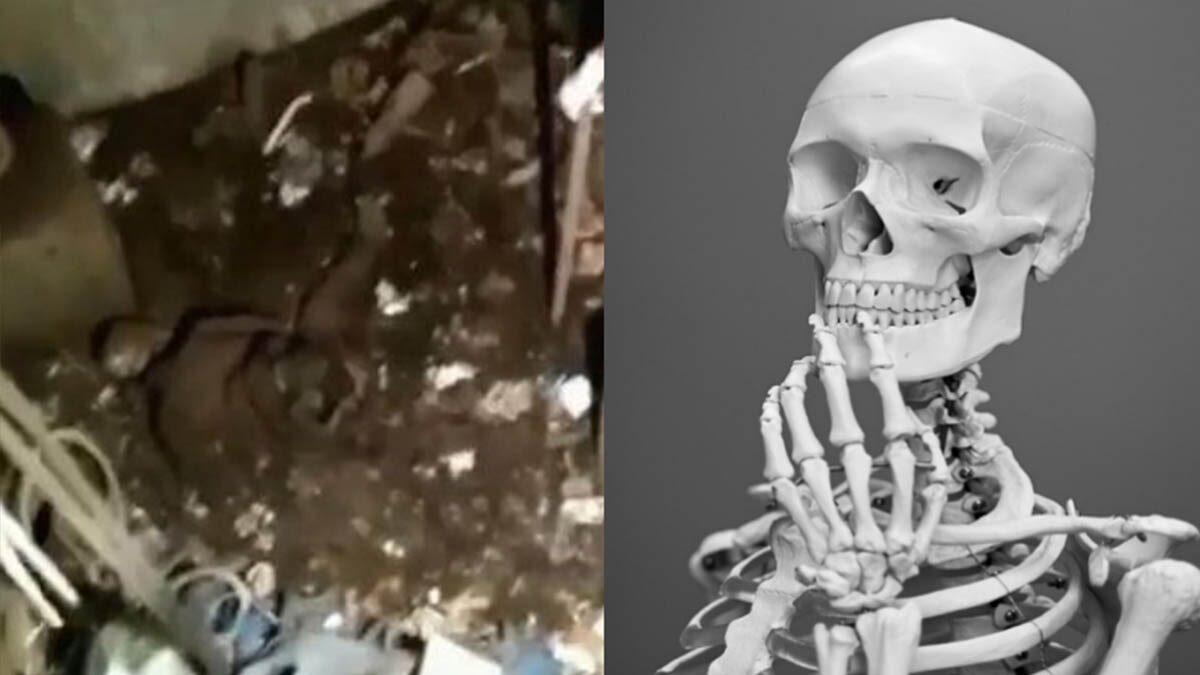 สุดหลอน! พบโครงกระดูกมนุษย์ปริศนา ในลิฟต์โรงพยาบาล ไม่ได้เปิดมา 24 ปี