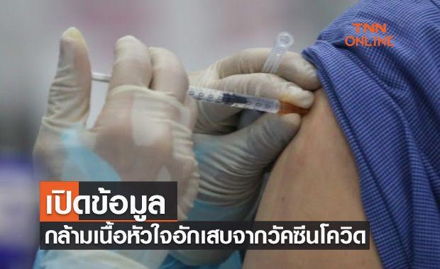 ราชวิทยาลัยอายุรแพทย์ฯเปิดข้อมูล กล้ามเนื้อหัวใจอักเสบจากวัคซีนโควิด-19