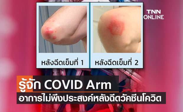 รู้จัก COVID Arm อาการไม่พึงประสงค์หลังฉีดวัคซีนโควิดชนิด mRNA