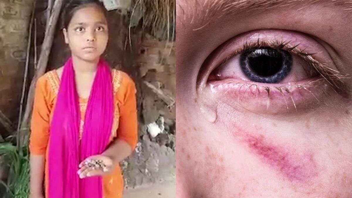 สุดแปลก! สาวอินเดีย ร้องไห้เป็นเม็ดหินแทนน้ำตา ลั่นหลั่ง15 เม็ดต่อวัน