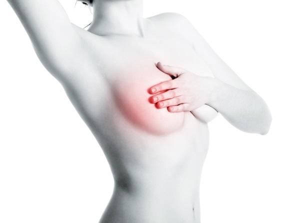 5 สัญญาณเตือนมะเร็งเต้านมที่หญิงไทยควรรู้