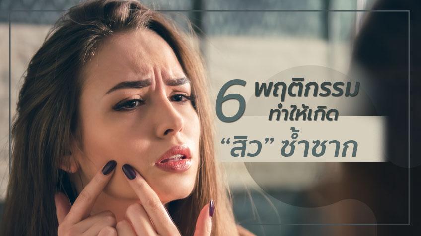 คลิกสิ! 6 วิธี ดูแลผิวไม่ให้สิวบุก ก่อนวันนั้นของเดือน อย่าเลื่อนผ่าน ถ้าไม่อยากหน้าเยิน!