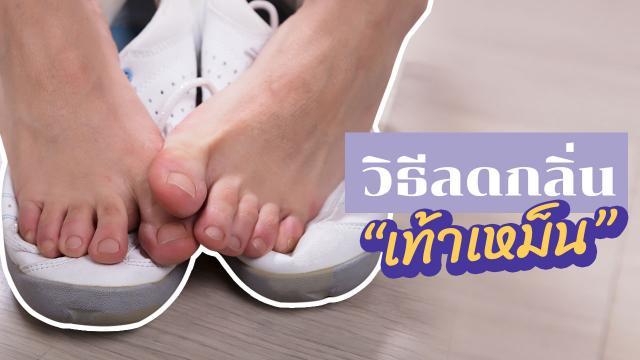 """7 วิธีแก้ """"กลิ่นเท้า"""" ดับกลิ่น """"เท้าเหม็น"""" ตัวช่วยง่ายๆ ทำได้ที่บ้าน!"""
